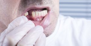 damaging a permanent tooth in State College